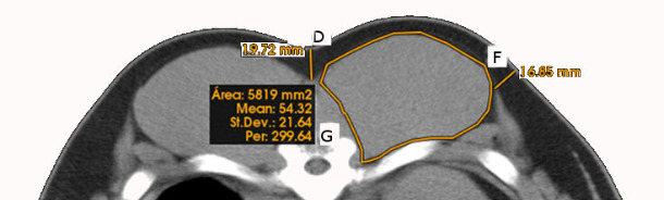 Linear, curvilinear and area measurements obtained on CT scans of the loin area (D = Top subcutaneous fat layer thickness, F = Lateral subcutaneous fat layer thickness, G = Loin area and perimeter.)