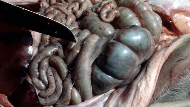 Fibrin strands in the peritoneum.