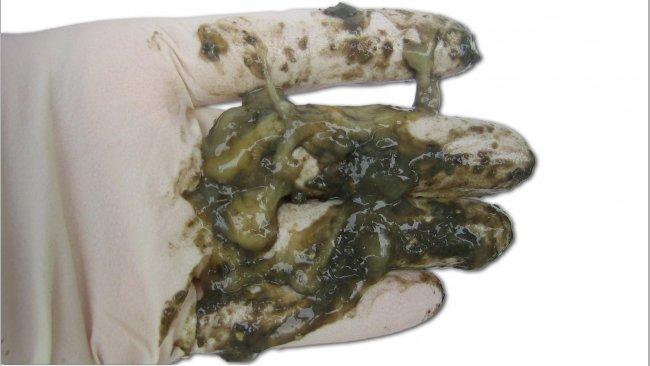 Catarrhal diarrhea