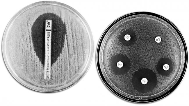 Classical techniques for evaluating antibiotic resistance. The picture shows an E-TEST on the left-hand side to measure the minimum concentration of antibiotic that prevents bacterial growth. The right-hand side shows an antimicrobial susceptibility test with different growth inhibition zones produced by the antibiotics.