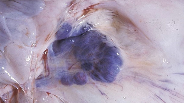 Figure 6. Autopsy findings in affected pigs, note haemorrhages in the mesenteric lymph nodes.