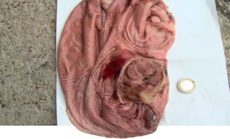 Ulcer with acute gastric haemorrhage