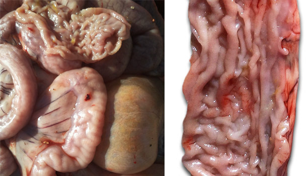 Thickening of the intestinal mucosa in the distal area of the small intestine