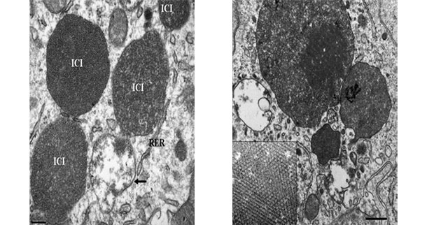 Electron micrograph of a lymph node from a PCV2-SD affected pig. Note the presence of PCV2 intracytoplasmic inclusion bodies (ICI); in some areas, the viral particles can be arranged in paracristalline arrays (inset of the right image).